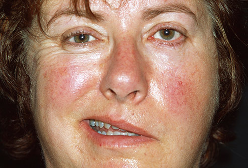 morfologia de la cara de un alcoholico